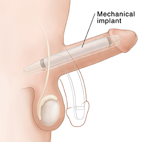 Side view of penis with malleable implant in place, outline shows relaxed position.