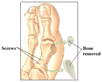 Big toe joint with bone removed and scews
