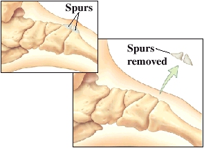 Images of midfoot joint spurs and removal of spurs