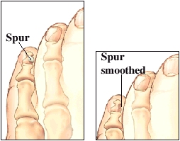 Images of toe spur and spur after being smoothed with a special file