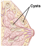 Side cut-away view of a fibrocystic breast