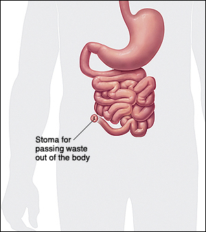 Stoma is formed to pass waste.