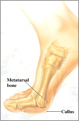 Image showing the metatarsal bone and a callus that formed at the end of the metatarsal bone.