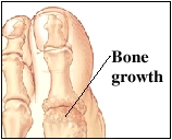 Image of the toe joint showing bone growth