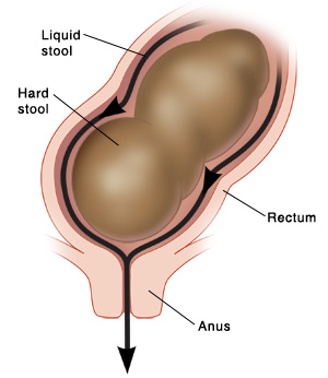 Close up cross section of rectum and anus showing liquid stool leaking around hard stool.