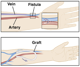 Forearm showing fistula created between artery and vein. Forearm showing graft placed between artery and vein.