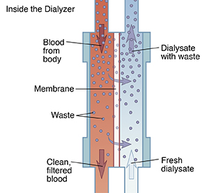 Diagram showing how blood moves through dialyzer to filter out waste.